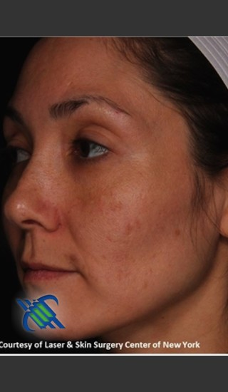 After Photo for Pigment Facial Skin Rejuvenation - Roy G. Geronemus, M.D. - Prejuvenation