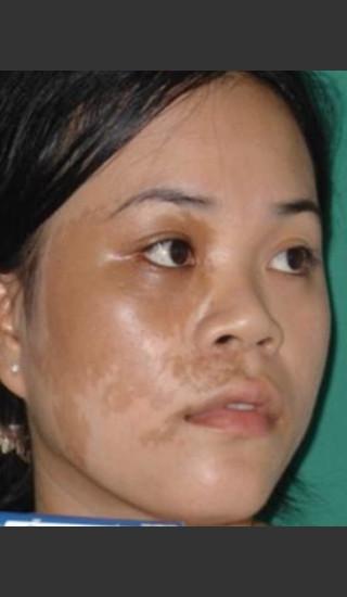 Before Photo for Quanta MDK Treatment of Pigment #78 -  - Prejuvenation