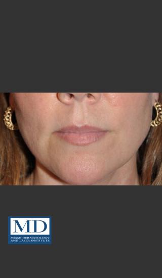 Before Photo for Lip Filler 135 - Jill S. Waibel, MD - Prejuvenation