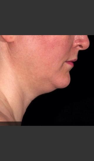 After Photo for SculpSure Submental - Bruce E Katz, M.D. - Prejuvenation