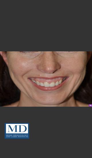 Before Photo for Neurotoxin Gummy Smile 128 - Jill S. Waibel, MD - Prejuvenation