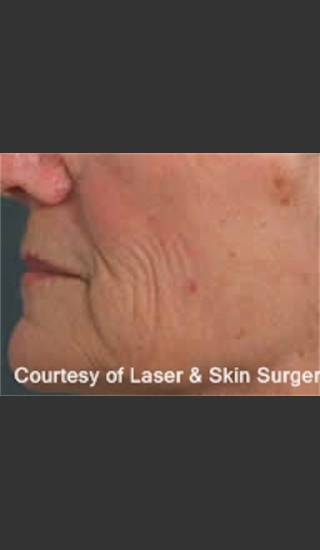 Before Photo for Treatment of Fine lines and Wrinkles -  - Prejuvenation