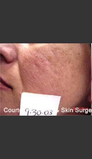 Before Photo for Treatment of Facial  Acne Scarring -  - Prejuvenation