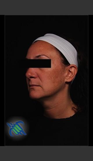 Before Photo for Treatment of Facial Melasma - Roy G. Geronemus, M.D. - Prejuvenation
