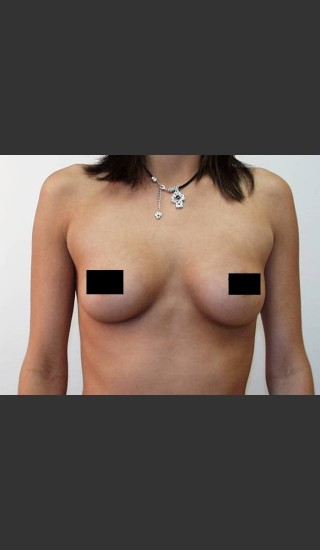 Before Photo for Breast Augmentation - Braden C. Stridde, M.D. - Prejuvenation