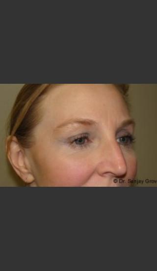 After Photo for Blepharoplasty 6307 - Sanjay Grover MD FACS - Prejuvenation