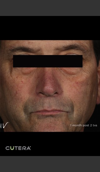 After Photo for Periorbital Vein Before & After Photo -  - Prejuvenation