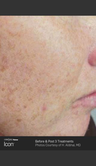 Before Photo for Skin Revitalization Before & After Photo -  - Prejuvenation