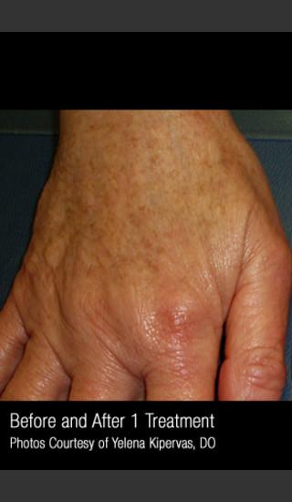 After Photo for Treatment of Pigmentation #329 -  - Prejuvenation