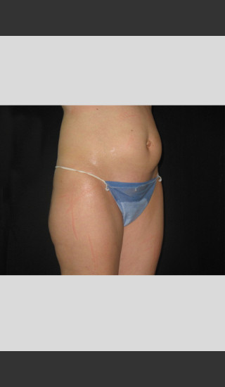 Before Photo for Fat Cell Destruction Body Contouring -  - Prejuvenation