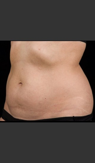 After Photo for SculpSure Abdomen - Lawrence Bass MD - Prejuvenation