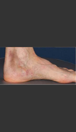 After Photo for Treatment of Pigmented Lesion on Foot - Mitchel P. Goldman M.D. - Prejuvenation