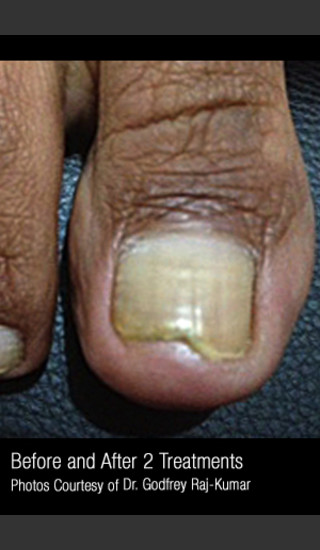 After Photo for Treatment of Nail Fungus #321 -  - Prejuvenation