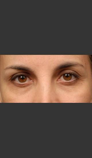 After Photo for 3DEEP Eye Wrinkle Reduction -  - Prejuvenation