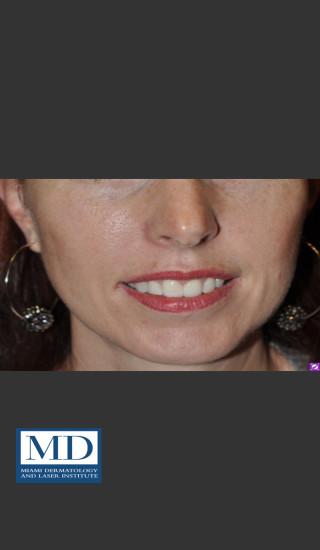 After Photo for Neurotoxin Gummy Smile 128 - Jill S. Waibel, MD - Prejuvenation