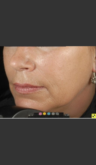 After Photo for Botox Dermal Fillers and Pigment Removal  - Brian D. Zelickson, M.D. - Prejuvenation