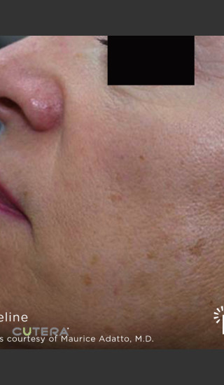 Before Photo for Sun Damage Before & After Photo -  - Prejuvenation