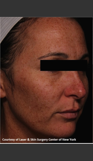 Before Photo for Full face Treament with Fraxel - Roy G. Geronemus, M.D. - Prejuvenation