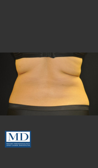 Before Photo for  Body Contouring Treatment 141 - Jill S. Waibel, MD - Prejuvenation