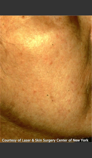 After Photo for Treatment of Facial Redness -  - Prejuvenation