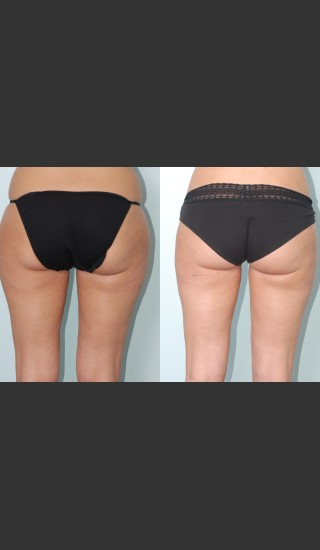 Before Photo for Liposuction of waist, hips, thighs, and tummy. - Mark B. Taylor, M.D. - Prejuvenation