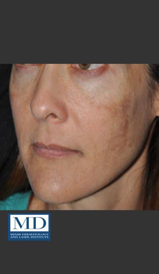 Before Photo for Melasma Face Treatment 118 - Jill S. Waibel, MD - Prejuvenation