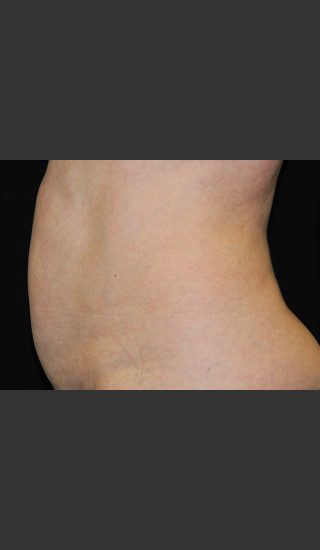 Before Photo for Body Contouring Treatment #122 -  - Prejuvenation