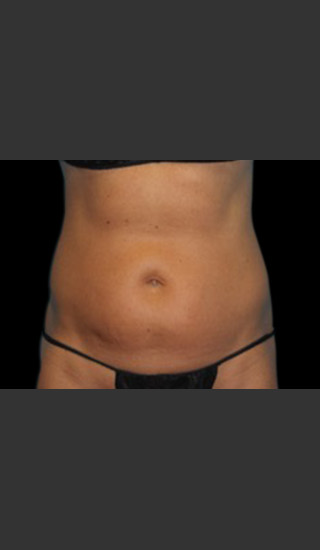 Before Photo for Body Contouring Treatment #123 -  - Prejuvenation