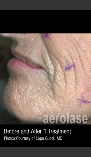 Before Photo for Treatment of Wrinkles, Tone and Texture #341 -  - Prejuvenation