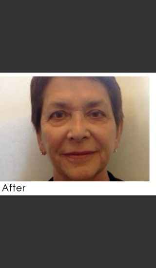 After Photo for Radiesse and Restylane Filler Treatment - Annie Chiu, MD - Prejuvenation