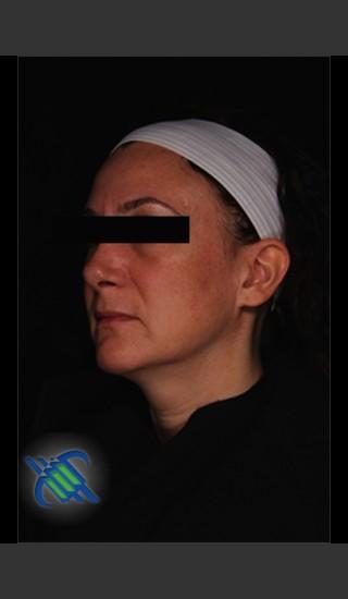After Photo for Treatment of Facial Melasma - Roy G. Geronemus, M.D. - Prejuvenation