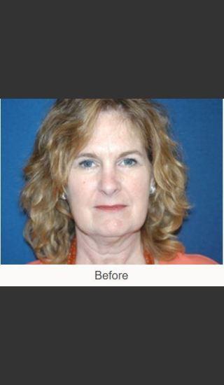 Before Photo for Facelift - Case #23 Details - James N. Romanelli, MD, FACS - Prejuvenation