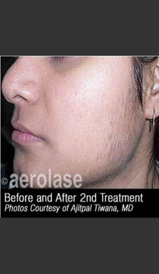 After Photo for Hair Removal #310 -  - Prejuvenation