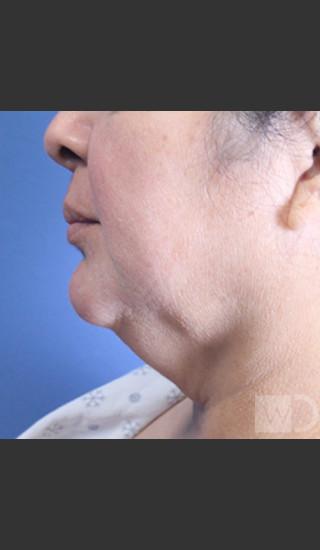 Before Photo for SmartLipo Liposuction of Lower Face - Daniel Friedmann  - Prejuvenation