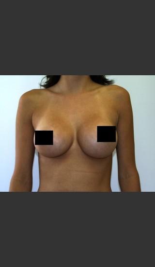 After Photo for Breast Augmentation - Braden C. Stridde, M.D. - Prejuvenation
