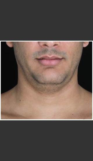 Before Photo for Double Chin Removed 1 CoolSculpting Treatment  - Leyda Elizabeth Bowes, M.D. - Prejuvenation