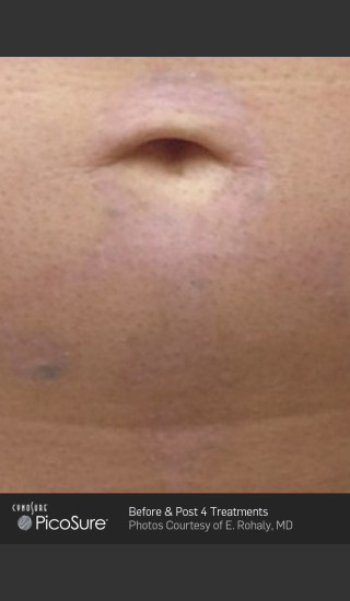 After Photo for Tattoo Removal Before & After Photo of Cross -  - Prejuvenation