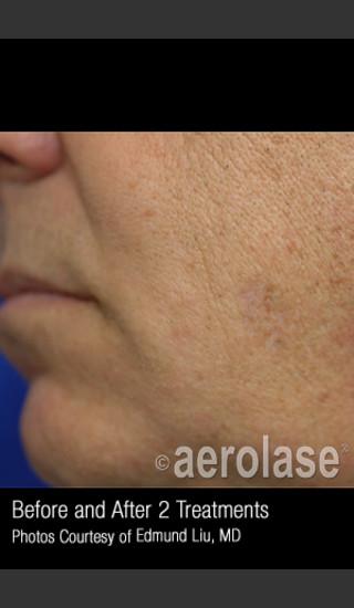 After Photo for Treatment of Facial Pigmentation #328 -  - Prejuvenation
