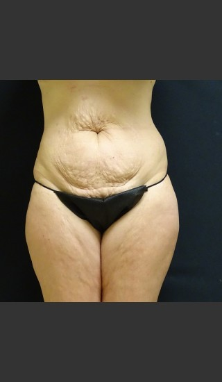 Before Photo for Tummy Tuck Case #1 - Gallaher Plastic Surgery & Spa MD - Prejuvenation