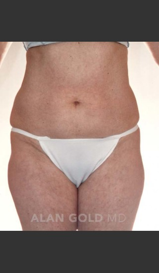Before Photo for Liposuction 380 - Alan Gold MD - Prejuvenation