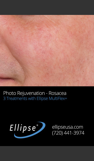After Photo for Before and After 3 Treatments of Rosacea -  - Prejuvenation
