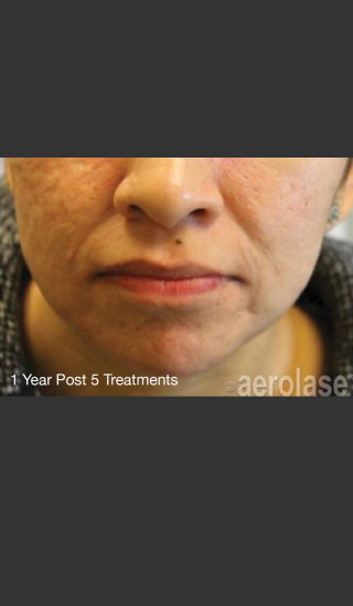 After Photo for NeoClear by Aerolase Acne Treatment - Michael H Gold - Prejuvenation