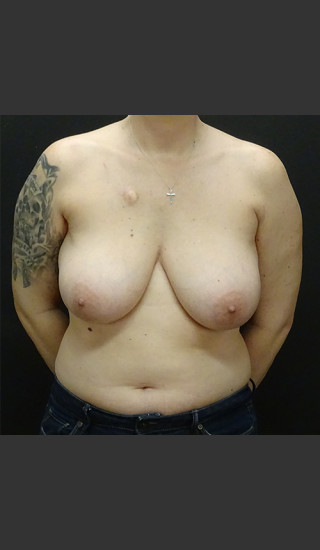 Before Photo for Breast Reconstruction Case #1 - Gallaher Plastic Surgery & Spa MD - Prejuvenation