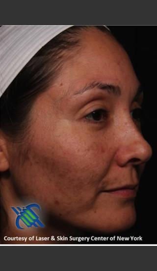 Before Photo for Female Full Face Fraxel Treatment  - Roy G. Geronemus, M.D. - Prejuvenation