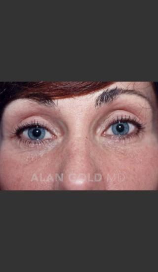 After Photo for Blepharoplasty 1014 - Alan Gold MD - Prejuvenation