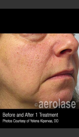 After Photo for Treatment of Facial Redness #336 -  - Prejuvenation