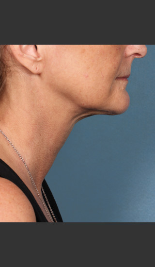 After Photo for Kybella Treatment 55 Year Old Female -  - Prejuvenation