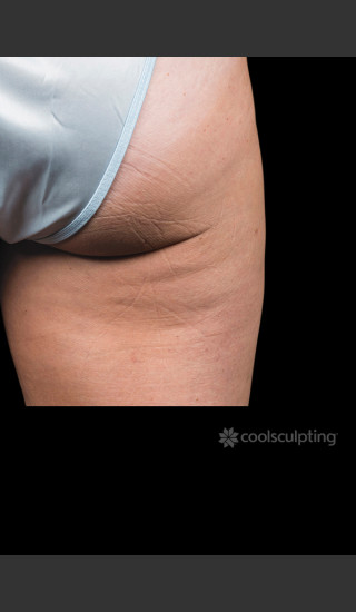After Photo for CoolSculpting on Woman's Outer Thigh -  - Prejuvenation