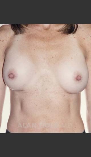 After Photo for Breast Augmentation 592 - Alan Gold MD - Prejuvenation