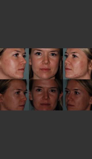 After Photo for Laser Treatment of Acne - Mark B. Taylor, M.D. - Prejuvenation